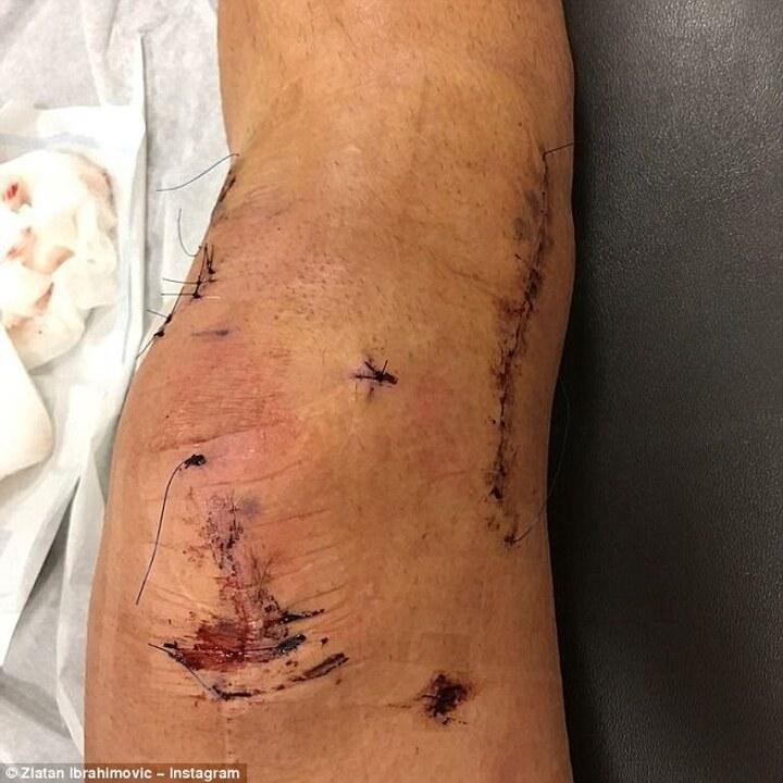 Takto hrozivě vypadalo Zlatanovo koleno po nutné operaci